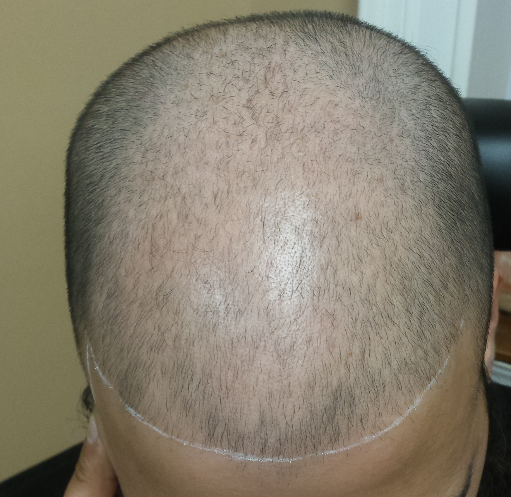 Scalp Micropigmentation can treat typical balding